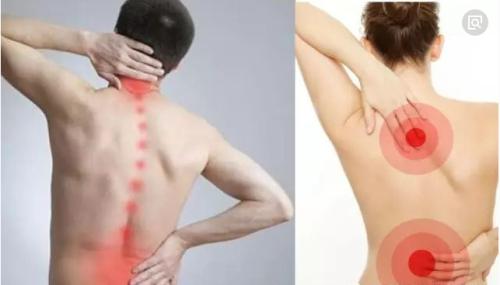 腰背肌肉筋膜炎怎么治疗好腰背肌肉筋膜炎贴什么膏药效果好