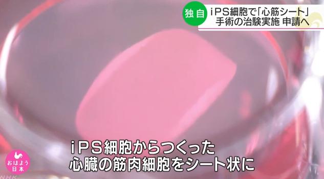 用iPS细胞治疗心脏病?日大阪大学拟进行临床试验