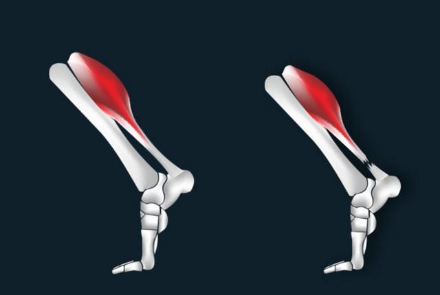 跑步小腿跟腱疼痛怎么办?几个方法教你解决困境