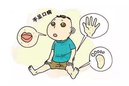 我要健康网——小儿手足口病常见的几种症状