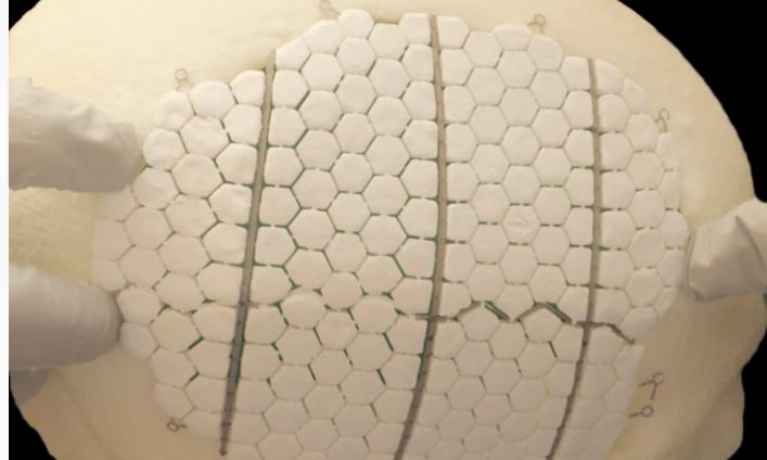 瑞典科学家研发生物陶瓷植入物 可刺激受损颅骨再生