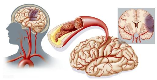 脑梗塞五种常见后遗症,最后一个很严重