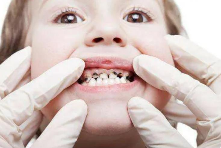 羿博士提醒您儿童龋齿若不重视,可能会对孩子造成不可逆的影响。